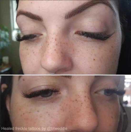 姑娘们故意给脸上纹雀斑成了潮流
