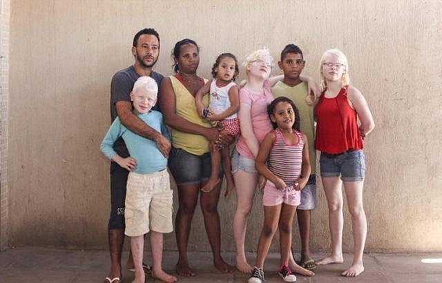黑人夫妻一连生下三个白皮肤孩子,一家人在一起经常被误会!