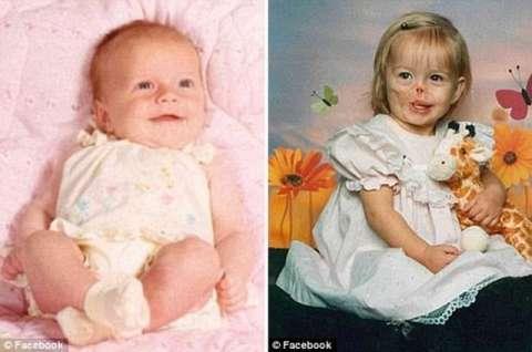 女孩3个月大时被咬掉半边脸,100多次整型手术后竟变成这般模样