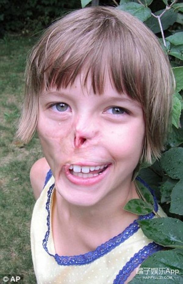 只因被牛奶洒到了脸上,14岁小姑娘竟是生生损失了半张